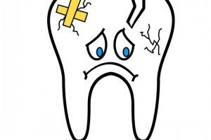 牙齿空了做牙套好吗带你认识牙套的作用