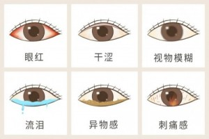 HOPE LIFE:NMN膳食补充剂被证实对干眼症治疗有效